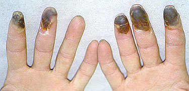 Image result for buerger disease