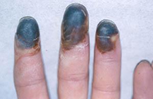 Buerger's Disease • Johns Hopkins Vasculitis Center