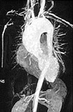 http://www.hopkinsvasculitis.org/wp-content/uploads/2010/05/organs.jpg