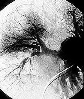 http://www.hopkinsvasculitis.org/wp-content/uploads/2010/05/pulmonary.jpg