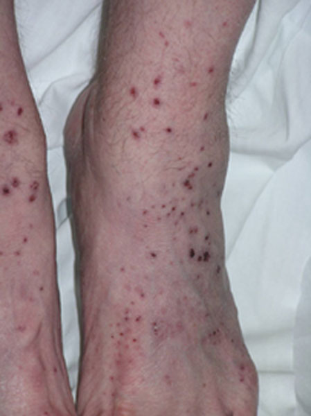 mpa include purplish bumps and spots pictured below palpable purpura