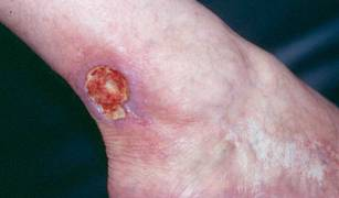 Human skin wound dressings to treat cutaneous ulcers