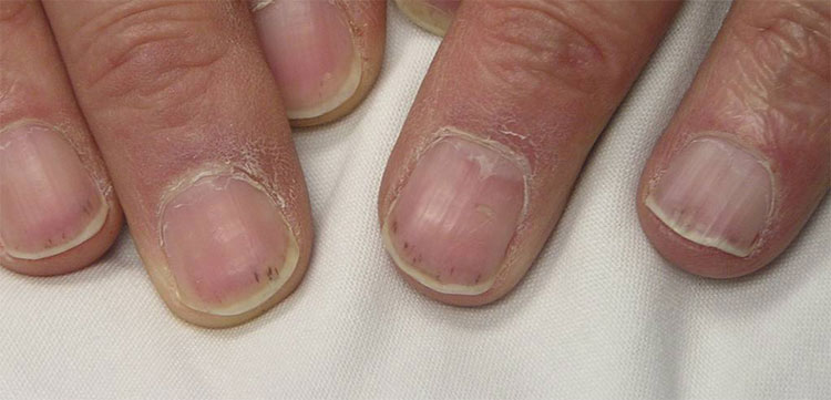10 Nail Signs That Could Save Your Life