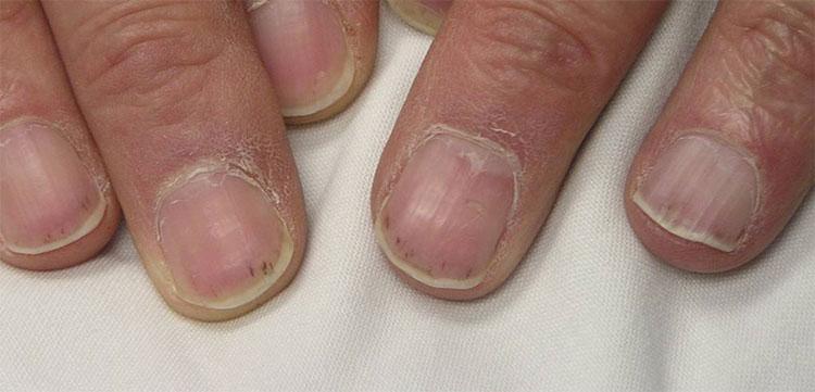 Microscopic Polyangiitis : Johns Hopkins Vasculitis Center