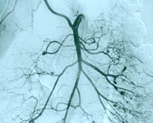 Image result for gastrointestinal vasculitis