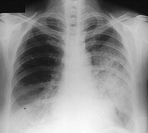 chest X–ray confirmed progression of her lung hemorrhage. The X ...
