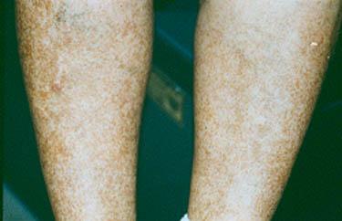 Symptoms of Vasculitis : Johns Hopkins Vasculitis Center